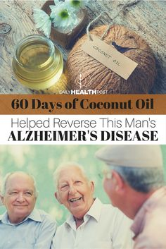60 Days of Coconut Oil Helped Reverse This Man's Alzheimer's Disease