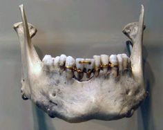 The earliest evidence of ancient dentistry we have is an amazingly detailed dental work on a mummy from ancient Egypt that archaeologists have dated to 2000 BCE. The work shows intricate gold work around the teeth. This mummy was found with two donor teeth that had holes drilled into them. Wires were strung through the holes and then around the neighboring teeth.