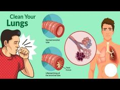 Getting Rid Of Mucus, Getting Rid Of Phlegm, Chest Congestion, Asthma, Healthy Tips, Lunges, Breakup, The Cure, Writer