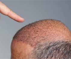 Your Hair Loss Can Be Cured in 14 Days - Watch This Trick