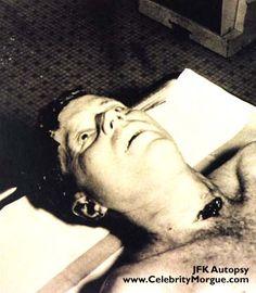 John F Kennedy Autopsy Photos