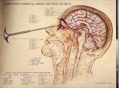 Transorbital lobotomy diagram