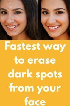 Fastest way to erase dark spots from your face Today I am going to share one very simple and most effective remedy to remove dark spots, sun tan patches from your skin and give your fresh, glowing look instanly You'll need 1/2 cup of fresh orange juice 1 tea spoon of lemon juice 3 tea spoons rose water 2 tea spoon honey What to …