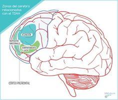 Trastorno por déficit de atención con hiperactividad (TDAH) — Guapamurcia.es | revista digital para la mujer murciana http://guapamurcia.es/not/8896/trastorno_por_deficit_de_atencion_con_hiperactividad__tdah_