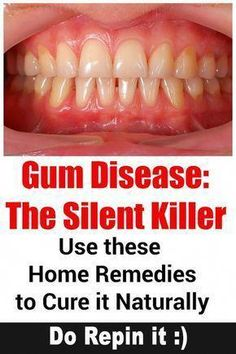Learn more about signs, prevention and treatment for Gum Disease (Gingivitis & Periodontitis). Also find 8 home remedies for Periodontal (Gum) Disease. Gum Health, Teeth Health, Healthy Teeth, Oral Health, Dental Health, Health And Wellness, Dental Care, Dental Hygienist, Health Facts