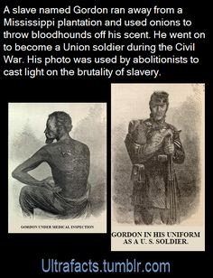 The infamous photo for the abolitionists' cause with the portrait of the man liberated to fight the injustice directly. Black History Books, Black History Facts, Black History Month, Photographie Indie, Memes, Wtf Fun Facts, Crazy Facts, The More You Know, Interesting History
