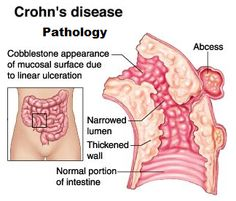 lower abdominal pain - Google Search