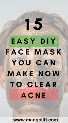 15 Amazing Easy DIY Face Mask To Clear Acne - MangoLift Skincare Tips and Tricks 15 Erstaunliche ein Face Scrub Homemade, Homemade Face Masks, Natural Face Moisturizer, Natural Skin Care, Natural Beauty, Face Cleanser, Natural Oils, Tips And Tricks, Doterra Acne