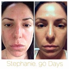 Two clinically-proven regimens + two powerful beauty tools = THIS  Stephanie's results are typical. You CAN be glowing by summer. Let's talk about how   REDEFINE + REVERSE + AMP MD Roller