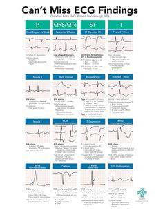 A high yield, on-shift resource to help Emergency Department providers spot subtle, high-risk ECG findings in Cardiac Nursing, Nursing Mnemonics, Pathophysiology Nursing, Triage Nursing, Nicu Nursing, Med Surg Nursing, Medical Surgical Nursing, Pediatric Nursing, Nursing School Notes