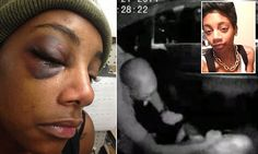 12/7/14 Punched in the face while handcuffed in a police car - but her cop attacker will NOT be charged: Prosecutors say officer who left woman, 23, with a broken eye socket 'acted professionally' | A Seattle police officer who punched a drunk woman in the face while she was handcuffed in the back of a patrol car will not face charges, prosecutors have revealed. .