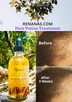 Homemade Hair Growth Oil, Diy Hair Oil, Best Hair Oil, Herbs For Hair Growth, Hair Growth Tips, Fast Hair Growth, Hair Tips, Natural Hair Growth Remedies, Reduce Hair Fall