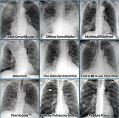 The Radiology Assistant : Chest X-Ray - Lung disease Radiology Student, Radiology Imaging, Medical Imaging, Radiology Humor, Medical Humor, Icu Nursing, Nursing Notes, School Nursing, Nursing Programs