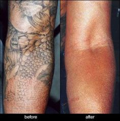 Tattoo Removal Before And After Pictures and Article #InkDoneRight #IdR #Tattoo… #tattooremovalbeforeandafter #KidsTattooRemoval