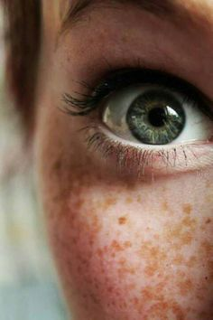 Freckles/eye detail photography