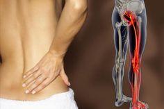 La ciática es un término general para el dolor se origina en el nervio ciático. La ciática es un síntoma de un trastorno que causa dolor leve...