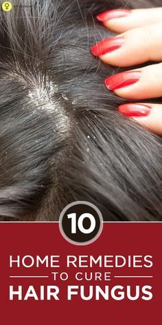 Top 10 #Homeremedies To Cure Hair Fungus