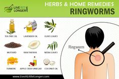 Get Rid Of Ringworm, Home Remedies For Ringworm, Acne Remedies, Natural Home Remedies, Essential Oils For Ringworm, Best Essential Oils, Turmeric Uses, Turmeric Health Benefits, Home Remedies