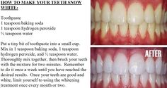 How To Make Your Teeth Snow White
