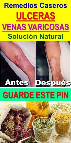 tratamiento para venitas rojas en las piernas