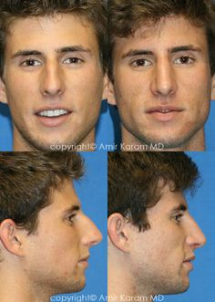 Considering a nose job? Rhinoplasty is a common procedure for Dr Amir Karam of Carmel Valley Facial Plastic Surgery in San Diego. Honey Face Cleanser, Nose Fillers, Nose Jobs, Rhinoplasty Before And After, Nose Surgery, Human Art, Plastic Surgery, Facial, Men