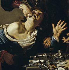 CARAVAGGISTA — Caravaggio (attr.), The Tooth Puller (c....