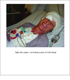 After Surgery, Brain Tumor, Bad Hair Day, My Books, Cancer, Inspired, Inspiration, Biblical Inspiration, Motivation
