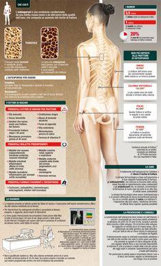 Osteoporosis Awareness Month- know your bones. Rheumatoid Arthritis Symptoms, Fibromyalgia, Spinal Arthritis, Calcium Benefits, Bone Loss, Bone Density, Bone And Joint, Behance, Arthritis