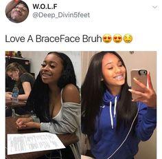 I highkey miss my braces 😬 Cute Girls With Braces, Cute Braces Colors, Kids Braces, Teeth Braces, Braces Problems, Braces Retainer, Black Braces, Braces Tips, Brace Face