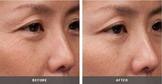 The difference after use Artistry Skin Care Product.  ARTISTRY US