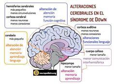 Muy importante la estimulacion temprana en el Sindrome de Down
