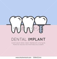 Isolated Vector Style Illustration Logo Badge or Dental Tooth Implant Installation Process, Aesthetics, Orthodontist