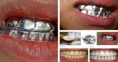 Este tratamiento ha sido descrito por numerosas personas como eficaz. El blanqueamiento de los dientes clásico no funciona en todos los dientes, sobre todo si son de color gris, ya que el efecto no es visible y sólo es más eficaz cuando se trata de los dientes amarillentos. Hay muchos producto