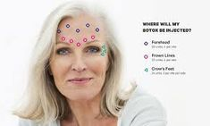 Our illustrated Botox forehead and face guide discusses how many Botox units you need for your crow's-feet, frown lines, and forehead wrinkles, and details how long it takes for Botox to work. Laser Hair Removal Face, Hair Removal Cream, Botox Fillers, Dermal Fillers, Facial Fillers, Botox For Sweating, Botox Forehead, Botox Face, Botox Injection Sites