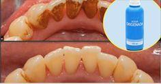Esta sustancia de color amarillenta que se acumula directamente en los dientes hace que los mismos no se vean sanos ni bonitos y ocurre mayormente en las personas que fuman o consumen café. Tartar Removal, Dental Pick, Dental Care, Youtube, Home Remedies, Natural Health Remedies, Periodontitis, Cure Tooth Decay, First Tooth