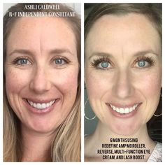 Before/After Rodan+Fields Redefine, Reverse, and Lash Boost