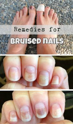Remedies for bruised nails