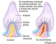 The Cupula: located within the ampullae of each of the three semicircular canals. As fluid rushes by the cupula hair cells within it sense rotational acceleration and transmit the corresponding signal to the brain the vestibulocochlear nerve (CN VIII) Sensory Nerves, Vestibular System, Craniosacral Therapy, Human Body Anatomy, Medical, Neuroscience, Science Projects, Occupational Therapy, Physiology