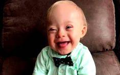 Τα πάντα για τον άνθρωπο         : Ένα παιδάκι με σύνδρομο Down είναι το «Μωρό της Ge...