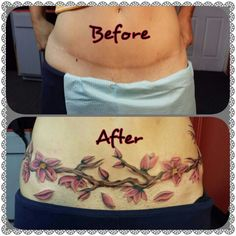 Cover up tummy tuck scar with a tat...very cool