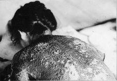 Hibakusha is the term widely used in Japan referring to victims of the atomic bombings of Hiroshima and Nagasaki. Atomic Bomb Hiroshima, Rare Historical Photos, Japanese Photography, Nuclear War, Rare Images, Nagasaki, Family Album, In Hollywood, World War Ii