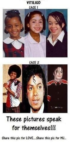 Michael Jackson and Vitiligo. So Sad :( Pam Pam, King Of Music, The Jacksons, Jackson Family, All Family, Beautiful Men, Gorgeous Lady, My King, Celebrities