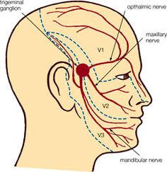 facial muscles with trigeminal neuralgia - Google Search