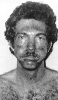 Jeff Rignall as he appeared after escaping John Wayne Gacy.  He was beaten up, repeatedly raped by Gacy and an accomplice who was never identified, and chloroformed so many times it caused him serious liver damage.  Just describing his ordeal, years later, was so devastating for him that he puked on the witness stand.