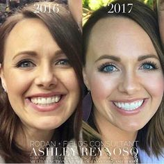 She is for sure aging backwards! Rodan and Fields is skincare that works! These results speak for themselves! Best Anti Aging, Anti Aging Skin Care, Rodan And Fields Redefine, Redefine Regimen, Rodan And Fields Consultant, Aging Backwards, Younger Looking Skin, Skin Care Regimen, Beauty Regimen