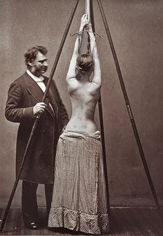 Lewis Sayre and his suspension device for the treatment of scoliosis (1877) CREEEPY