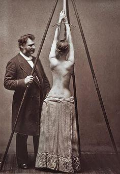 scoliosis/1877