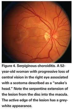 """Review of Ophthalmology® > Recognizing the 'White Dot' Syndromes"""": Part one of a two-part review of inflammatory chorioretinopathies of unknown with a printable table of these and all of the conditions described at the end of the article"""