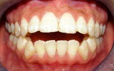 Cách sửa răng vẩu nhanh chóng triệt để nhờ phẫu thuật hàm