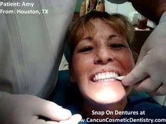 ▶ Implant Retained Dentures - Mini Dental Implant Dentures - Snap On Dentures - YouTube